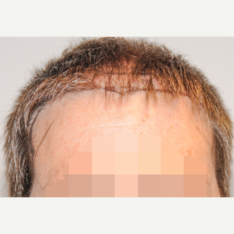 45-54 year old man treated with FUSS Hair Transplant before 3327153