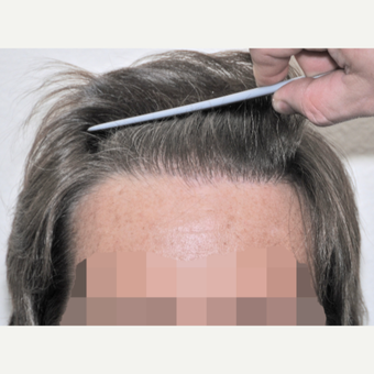 45-54 year old man treated with FUSS Hair Transplant after 3327153
