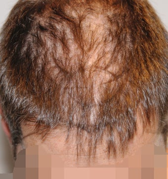 45-54 year old man treated with FUSS Hair Transplant 3327153