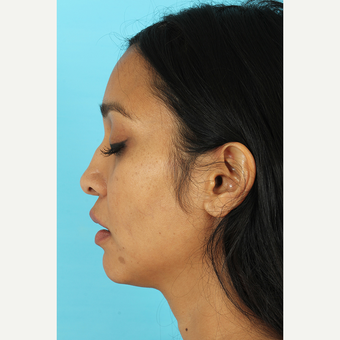 25-34 year old woman treated with Revision Rhinoplasty before 3691235