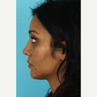 25-34 year old woman treated with Revision Rhinoplasty after 3691235
