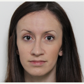 25-34 year old woman treated with Rhinoplasty after 3340351