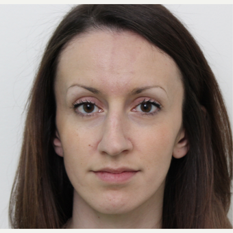 25-34 year old woman treated with Rhinoplasty before 3340351