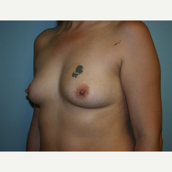 Breast Augmentation before 3561978