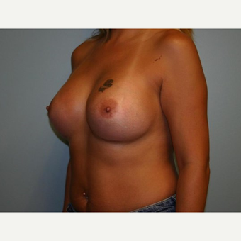 Breast Augmentation after 3561978