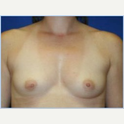 27 year old woman with breast asymmetry- breast augmentation before 3310697