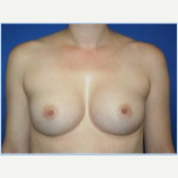 27 year old woman with breast asymmetry- breast augmentation after 3310697