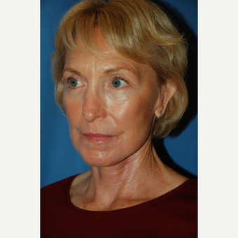 55-64 year old woman treated with Facelift after 3610803