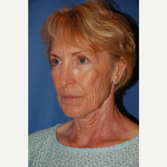 55-64 year old woman treated with Facelift before 3610803