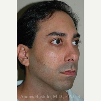 31 year old man treated with Revision Rhinoplasty before 3460721