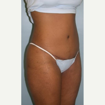 35-44 year old man treated with Tummy Tuck 1848314