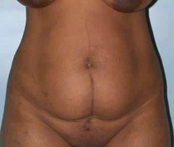 35-44 year old man treated with Tummy Tuck before 1848314
