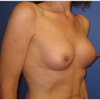 45-54 year old woman treated with Breast Augmentation (R. 286cc, L. 304cc) after 3309890