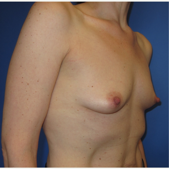 45-54 year old woman treated with Breast Augmentation (R. 286cc, L. 304cc) before 3309890