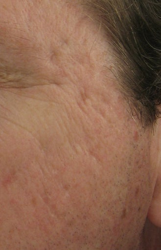 Fraxel repair for acne scars before 44108