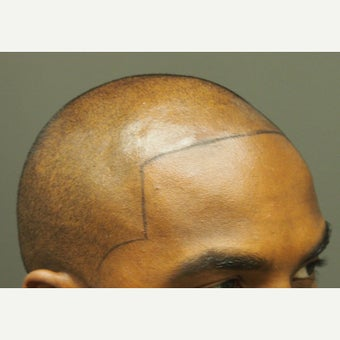 25-34 year old man treated with Scalp Micropigmentation before 2447039