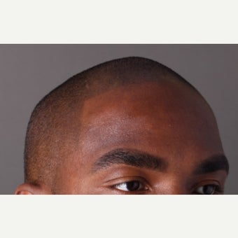 25-34 year old man treated with Scalp Micropigmentation after 2447039