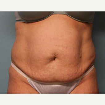 35-44 year old woman treated with Tummy Tuck before 1887569