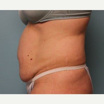 35-44 year old woman treated with Tummy Tuck 1887569