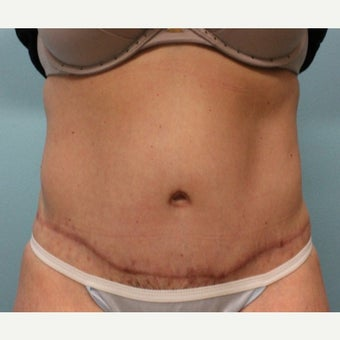 35-44 year old woman treated with Tummy Tuck after 1887569