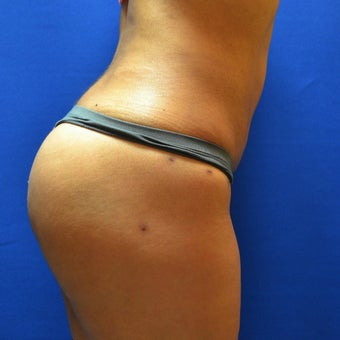 25-34 year old treated with Brazilian Butt Lift after 1792594