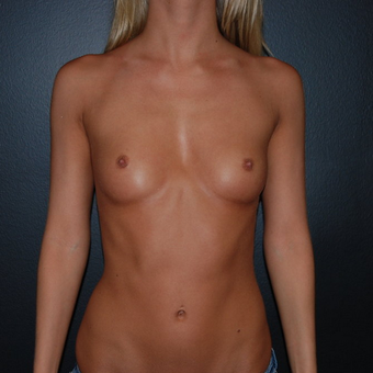 Moderate sized breast augmentation before 132105