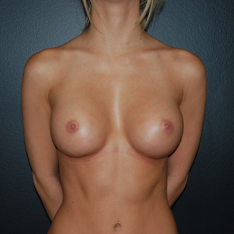 Moderate sized breast augmentation after 132105