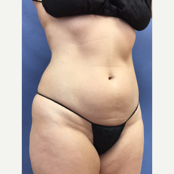 45-54 year old woman treated with Smart Lipo before 3371788