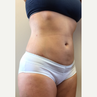 45-54 year old woman treated with Smart Lipo after 3371788