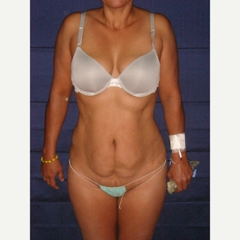 49 year old woman treated with Tummy Tuck before 3727265