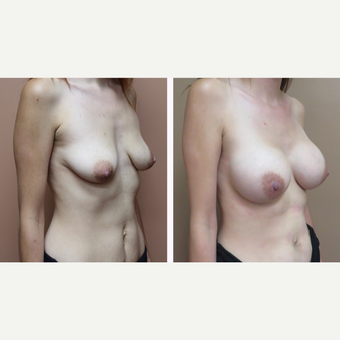25-34 year old woman treated with Breast Augmentation before 3300051
