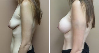 25-34 year old woman treated with Breast Augmentation after 3300051