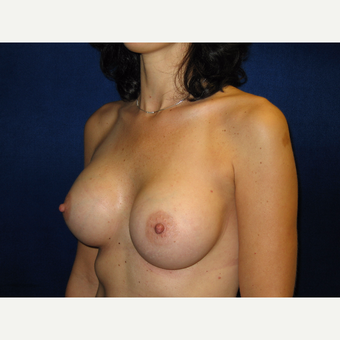 35-44 year old woman treated with Breast Augmentation after 3711808