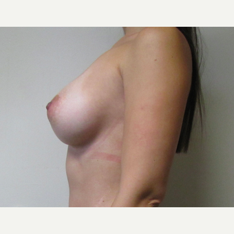 30 year old woman underwent Breast Augmentation with 380 cc saline Breast Implants after 3467994