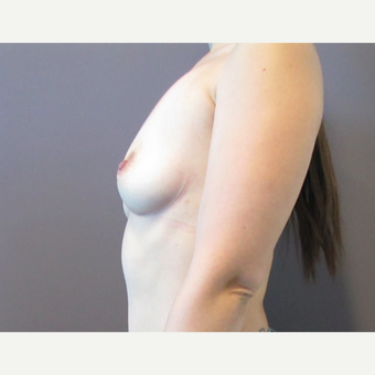 30 year old woman underwent Breast Augmentation with 380 cc saline Breast Implants before 3467994
