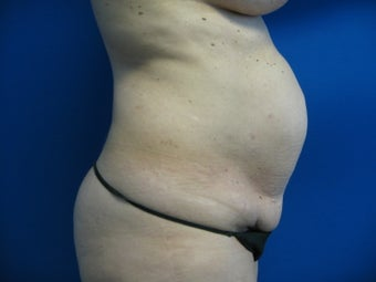 43 Year Old Woman Treated for Abdominal Fullness before 1156263