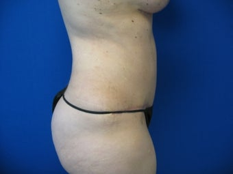 43 Year Old Woman Treated for Abdominal Fullness after 1156263