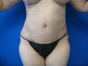 43 Year Old Woman Treated for Abdominal Fullness 1156263