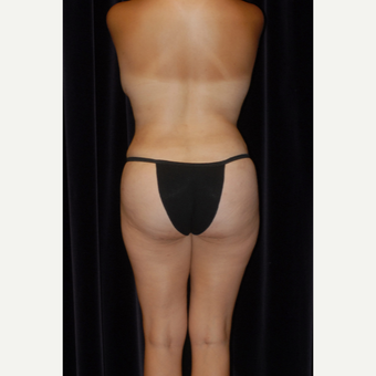 25-34 year old man treated with Butt Augmentation after 2743100
