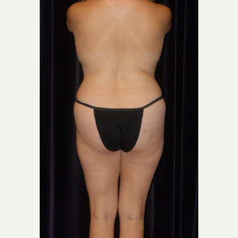25-34 year old man treated with Butt Augmentation before 2743100