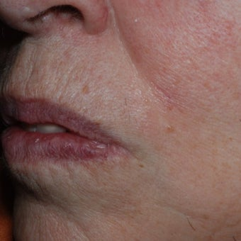 65-74 year old woman treated with Mole Removal