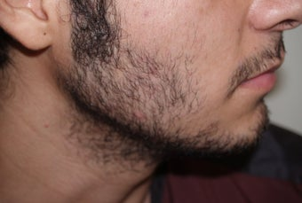 Before and After Beard Transplant