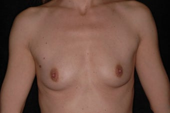 42 Year Old Female With Sientra Classic Shaped Breast Implants before 1192276