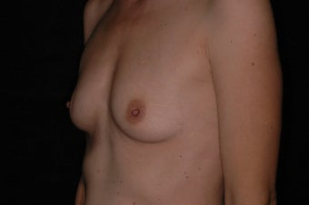 42 Year Old Female With Sientra Classic Shaped Breast Implants 1192276
