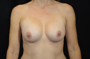 42 Year Old Female With Sientra Classic Shaped Breast Implants after 1192276