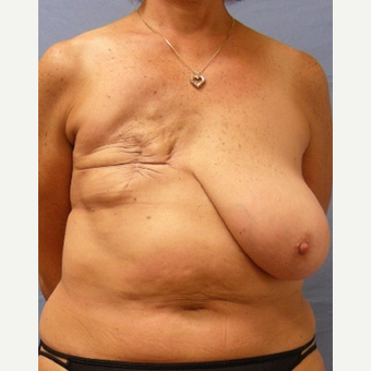 55-64 year old woman treated with Breast Reconstruction before 3630818
