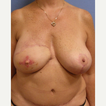 55-64 year old woman treated with Breast Reconstruction after 3630818