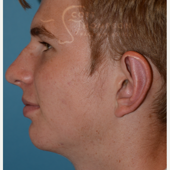 17 or under year old man treated with Ear Lobe Surgery after 3624983