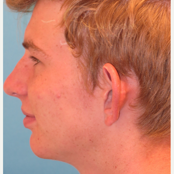 17 or under year old man treated with Ear Lobe Surgery before 3624983