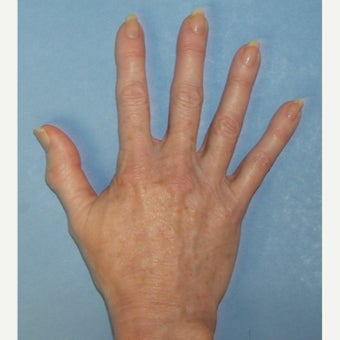 Hand Rejuvenation with Radiesse - natural and youthful hands